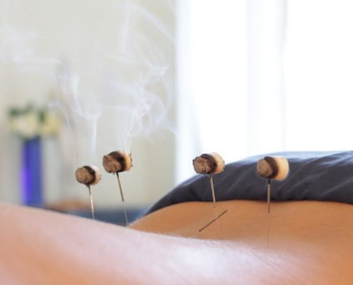 Moxibustion New Orleans